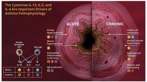 Acute And Chronic Asthma