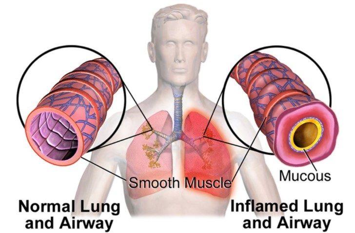 How Does An Inhaler Work